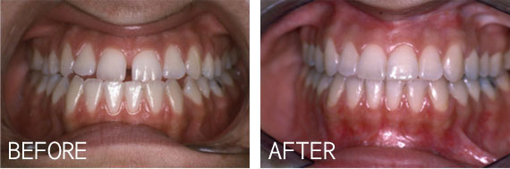 Oral Surgery Results