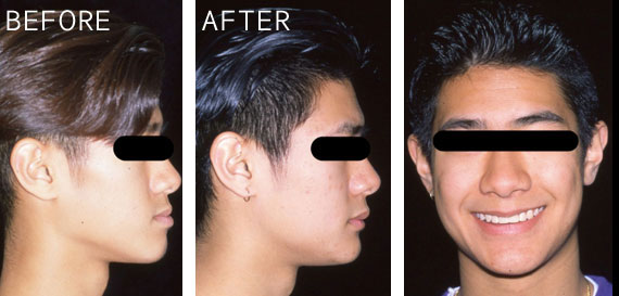 Oral Surgery Before+After